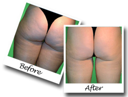 Banish Cellulite